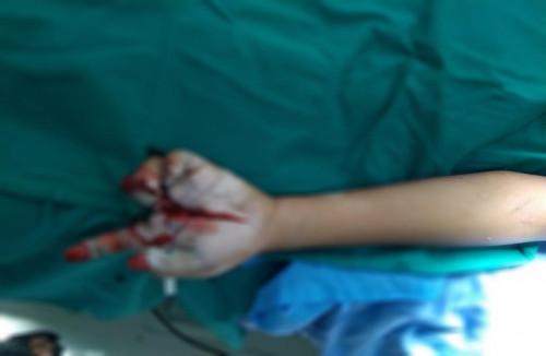 Bé trai 11 tuổi mất ngón tay vì pháo nổ