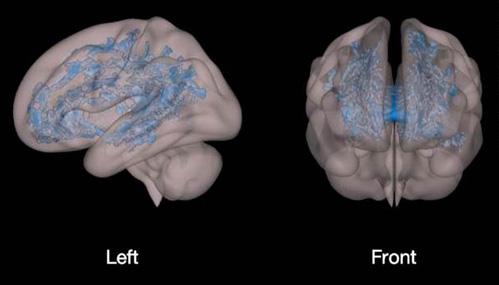 Đây là bên trái và phía trước não bộ của trẻ hay xem thiết bị điện tử. Phần màu xanh cho thấy sự kém phát triển lan rộng và sự thiếu tổ chức của chất trắng cũng ở chính khu vực hỗ trợ việc học tập của trẻ.