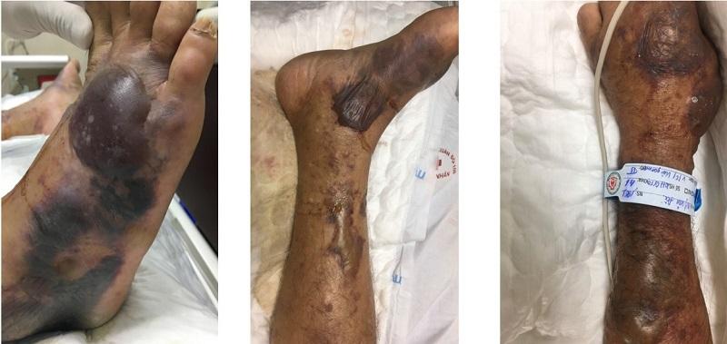 Chân, tay bệnh nhân bị