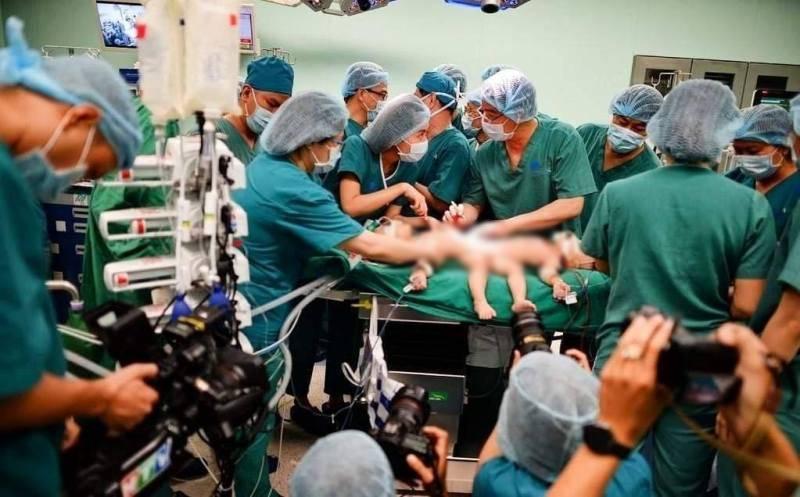Các bác sĩ hoàn tất khâu chuẩn bị trước khi tiến hành tách đôi cặp song sinh dính liền vùng bụng.