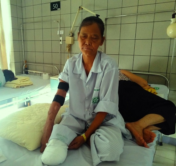 bà Ngô Thị Bích đang điều trị tại  bệnh viện
