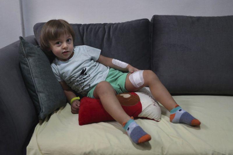 Cậu bé Abed - 3 tuổi đã gặp nhiều chấn thương tâm lý sau vụ nổ