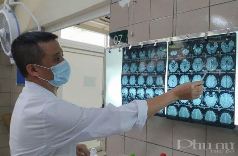 Hình ảnh phim cộng hưởng từ sọ não có tổn thương chất trắng lan tỏa trên não.