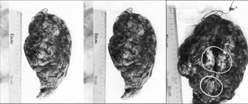 Hình ảnh đại thể mô bệnh phẩm phổi làm xét nghiệm giải phẫu bệnh