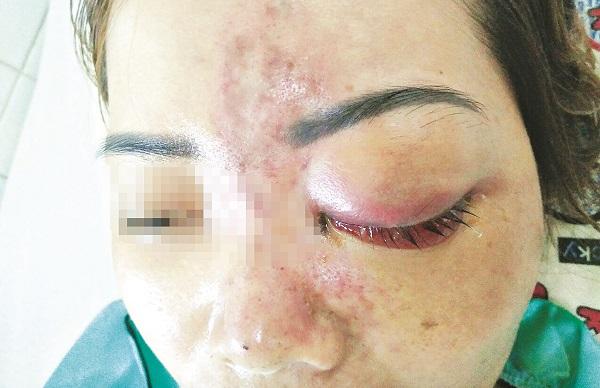 Một phụ nữ bị mù mắt vì tiêm filler tại spa không phép. Ảnh: Int
